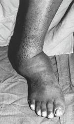 stopa cukrzycowa3